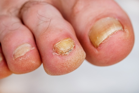 A New Website Reveals the Best Toenail Fungus Treatment Options ...